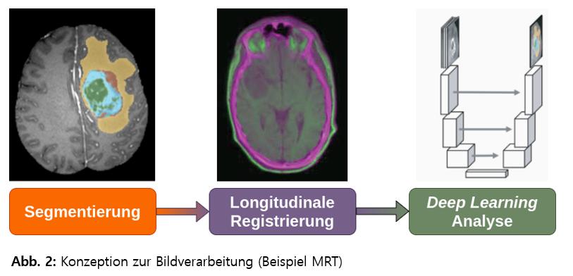 Konzeption zur Bildverarbeitung (Beispiel MRT)