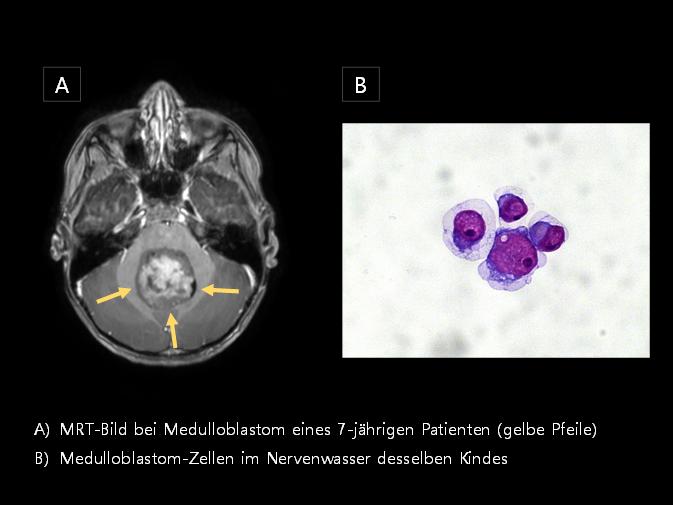 ZNS-Tumoren sind im Kindes- und Jugendalter die häufigste Ursache tumorbedingter Todesfälle. Eine engmaschige Therapie-Überwachung und die Früherkennung von Rückfällen sind prognost-isch wegweisend. In unserem Projekt werden MRT-Bilddaten und genetische Marker im Nerven-wasser von Patienten systematisch analysiert.