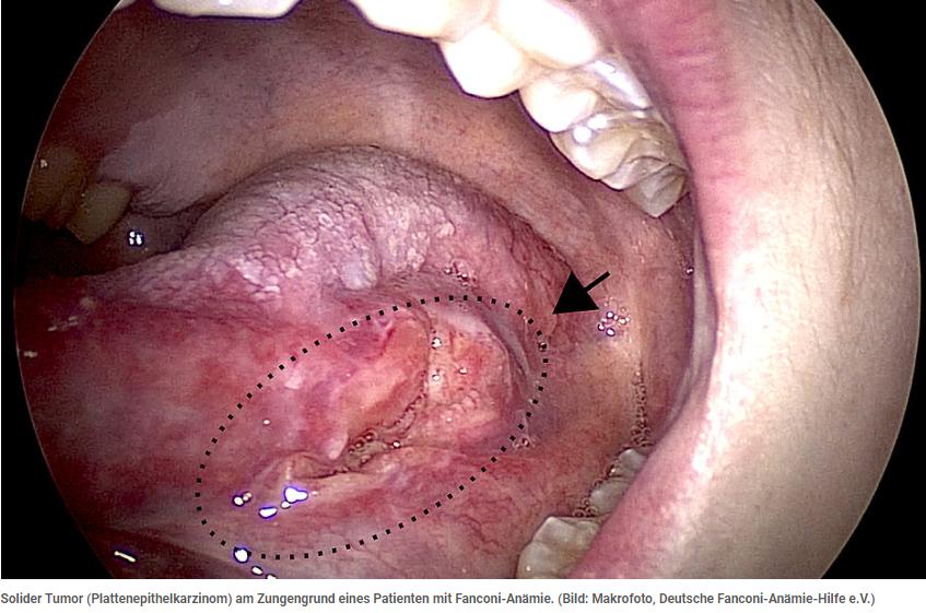 Solider Tumor am Zungengrund_Fanconi-Anämie